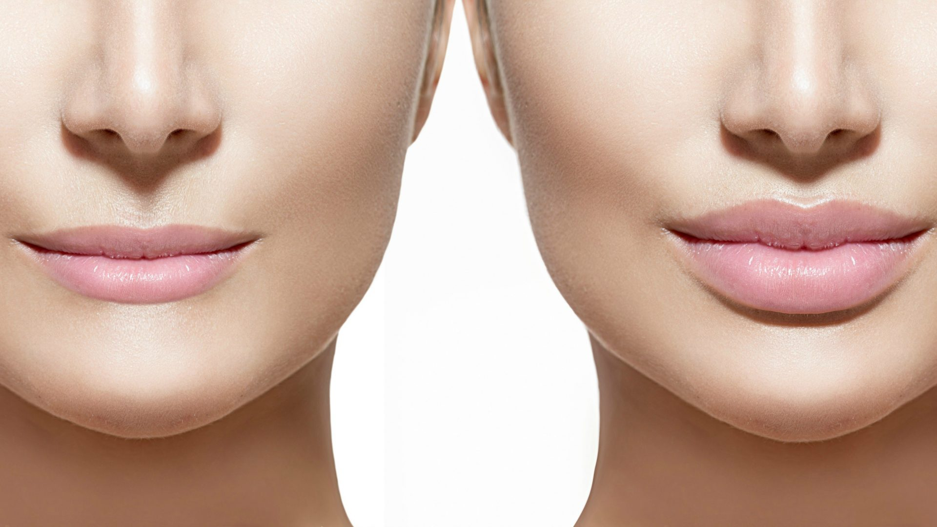 Lip Augmentation and Benefits