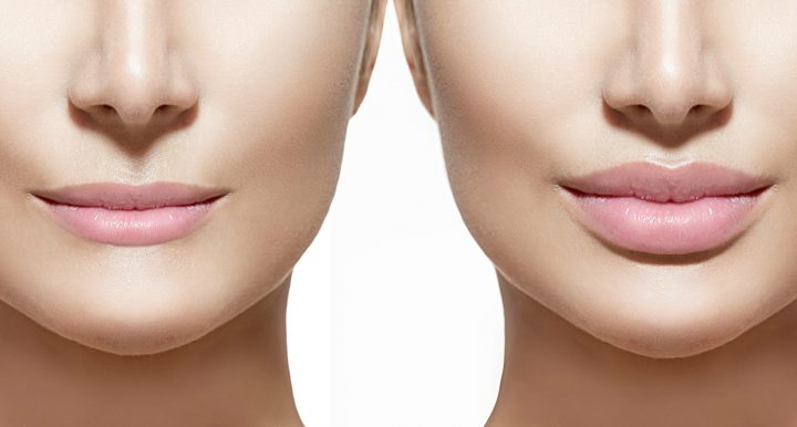 Lip Augmentation and Benefits